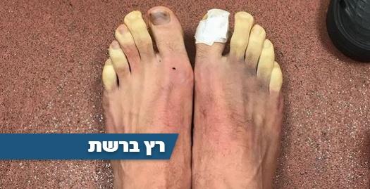 הרגליים הקפואות של אדם ללאנה (אינסטגרם)