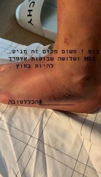 סטורי הפציעה של אלון תורג'מן (אינסטגרם)