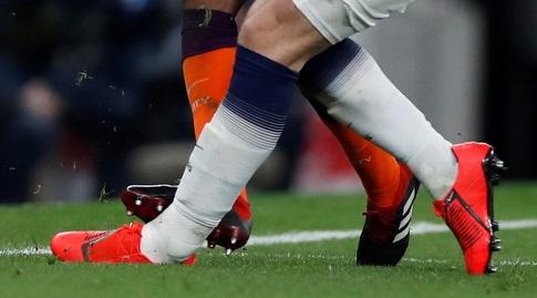 רגלו של הארי קיין בזמן הפציעה (רויטרס)
